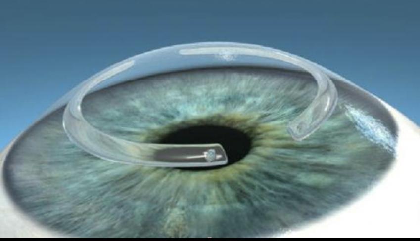 03-2-segmentos-de-anillos-vista-superior