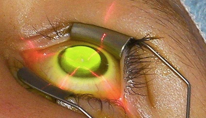 aplicacion-ultravioleta