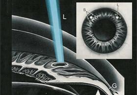 imagen_glaucoma_b